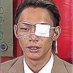 黒咲豪(くろさきごう)の眼帯の理由がパネェ!強いか弱いかボクシング歴も気になる!
